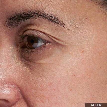 Age Defying Eye Wrinkle Treatment Laser Tria Canada